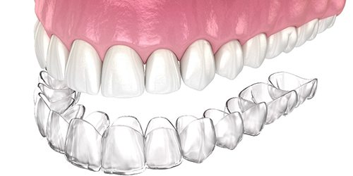 Digital image of a top row of teeth and a clear aligner sitting directly underneath the teeth to show the type of fit and customization they offer