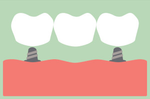 Your dentist in Plano may recommend all on 4 dental implants for severe tooth loss.