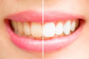 Before-and-after teeth whitening diagram